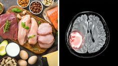 Neurologists Find a Link Between the Keto Diet and Brain Tumor Growth Healthy Brain, Brain Food, Keto Diet Benefits, Brain Tumor, Lean Body, Atkins Diet, Ketogenic Diet, Low Carb Recipes, Nutrition