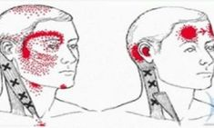 The trigger points in the neck can cause dizziness and vertigo that many people experience with fibromyalgia. These trigger points can disrupt your perception and sense of balance, causing you to d… Neck Strain, Muscle Strain, Vicks Vaporub, Stiff Neck Remedies, Referred Pain, Dry Needling, Jaw Pain, Vitamin Deficiency, Vitamins