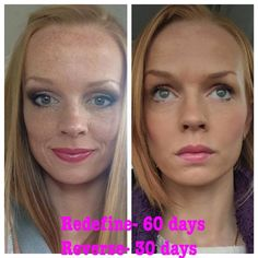Freckles are actually a sign of sun damage. Reverse can help with freckles, dark spots and uneven skin tone.