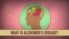 Cos'è la malattia di Alzheimer? - Ivan Seah Yu Jun
