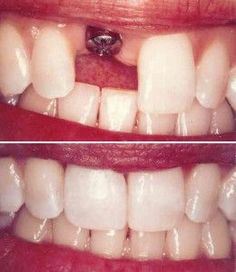 Before and After pictures of a dental implant. Patient was missing a single tooth. Find out why implants are do beneficial, and natural looking too! Dental Implant Procedure, Teeth Implants, Dental Procedures, Dental Surgery, Dental Implants, Dental Humor, Dental Hygiene, Dental Health, Dental Care