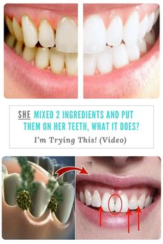 SHE MIXED 2 INGREDIENTS AND PUT THEM ON HER TEETH, WHAT IT DOES? I'm Trying This! (Video)