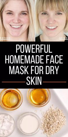 Below are 3 very powerful homemade face mask for dry skin that you can make at h. - Below are 3 very powerful homemade face mask for dry skin that you can make at home using very few - Facial For Dry Skin, Mask For Dry Skin, Dry Skin On Face, Skin Mask, Oily Skin Care, Face Skin Care, Skin Care Tips, Skin Tips, Homemade Facial Mask