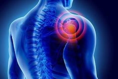 Pinched Nerve in Shoulder Blade: Symptoms Causes and Treatments Signs Of Lung Cancer, Lung Cancer Symptoms, Pinched Nerve In Shoulder, What Is Frozen Shoulder, Vitamine K2, Point Acupuncture, Postural, Natural Pain Relief, Pain Management