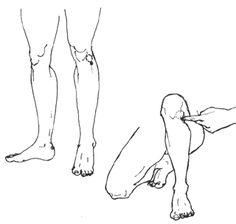digitopuntura, para los dolores de rodilla, .. además constipación, dolor de abdomen.