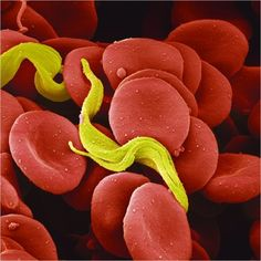 Trypanosoma brucei (African sleeping sickness)