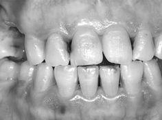 Zahnhygiene: Löcher in den Zähnen können tödlich sein | Wunderweib