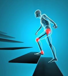 Fibromyalgia triggerpoint pain in the pelvic and knee area requires that fibro people learn new tecniques to negotiate stairs.