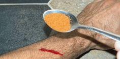 Επιφανειακή αιμορραγία: Το μπαχαρικό που την σταματάει σε λίγα δευτερόλεπτα!