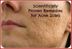 4 Scientifically Proven Remedies for Acne Scars