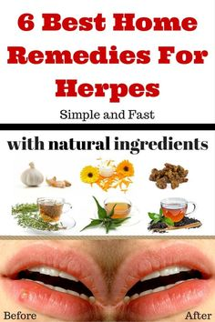 913 Best Treatments for Herpes Type 1 images in 2018 | Cold sore