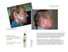 This is what 100% plant based ingredients does for Arbonne products. Petroleum products, like burn cream, Vaseline, etc protect the skin from outside sources but leeches chemicals into your body. Arbonne products, like these shown, protect, clean and heal, as well as pain relief!