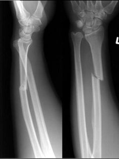 Galeazzi fracture-dislocations consist of fracture of the radius with dislocation of distal radioulnar joint and an intact ulna. A Galeazzi equivalent fracture is a distal radial fracture with a distal ulnar physeal fracture.  First described by Riccardo Galeazzi (1866-1952), an orthopaedic surgeon from Italy in 1934.  Read more: http://radiopaedia.org/articles/galeazzi-fracture-dislocation