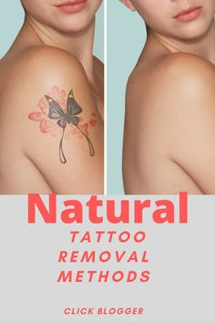 "By following the pre- and post-care tips detailed in the eBook, even the most sensitive-skinned individuals will get rid of their tattoos without suffering from unhealthy consequences."" How To Get Rid, How To Remove, Natural Tattoo Removal, Make Tattoo, Eyebrow Tattoo, Pre And Post, Detail, Tattoos, Tips"