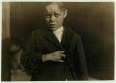 injuries, 1912? [Young cotton mill worker. A piece of the machine fell on his foot mashing his toe. This caused him to fall on to a spinning machine and his hand went into the unprotected gearing, crushing and tearing out two fingers.  Location: [Bessemer City, North Carolina].