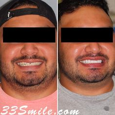 Prepless veneers can help fill in the gaps! #drjamsmiles #33Smile . . All photos and video of patients are of our actual patients. All media is the of Cosmetic Dental Associates. Any use of media contained herein is prohibited without written consent. . . #satx #satxdentist #dentistry #goals #smile #teeth #instagoals #transformationtuesday #beforeandafter #whiteteeth #perfect #transformation #teethwhitening #veneers #Invisalign #porcelainveneers #sanantonio #orthodontics #drmoore… Insta Goals, Porcelain Veneers, Dental Cosmetics, Smile Teeth, Dental Procedures, Cosmetic Dentistry, Transformation Tuesday, Orthodontics, Beautiful Smile
