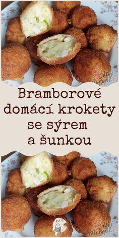 Pretzel Bites, Potatoes, Bread, Ethnic Recipes, Food, Hams, Top Recipes, Onions, Side Dishes