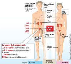 De nouvelles armes contre le cancer de la vessie
