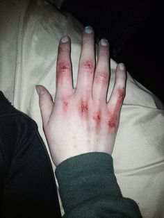 Date:Unknown Name: Broken Source: Marissatk Example of: Scraped knuckles Black Widow Aesthetic, Gore Aesthetic, Death Aesthetic, Aesthetic Grunge, Bruises Aesthetic, Cuts And Bruises, Sad Wallpaper, Girl Smoking, It Hurts