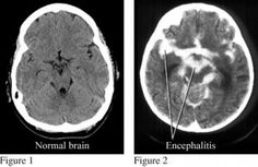Encephalitis is inflammatory disease of the membranes that surround the brain and is caused by bacterial or viral infections. This rare condition mostly affects the very young or elderly people