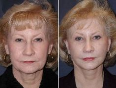 Facial Training To Appear Younger: Try This Double Chin Exercise For A Honed Face