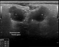 Pleomorphic adenoma of the salivary glands | Radiology Reference Article | Radiopaedia.org