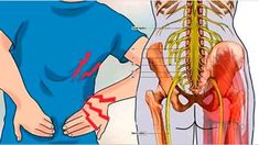 Воспаление седалищного нерва: достаточно 1 легкого упражнения, чтобы избавиться от боли всего за 5 минут!