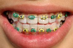 Colorful Metal Braces -- Curated by: Dr Stephen T E Malfair Inc. | Suite 301-1890 Cooper Rd, Kelowna, BC V1Y 8B7, Canada  | 250-860-8900