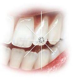 Teeth Diamonds like the Turkish
