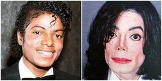 12 Celebrity Men With Bad Plastic Surgery