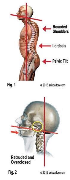 Erik Dalton - TMJ, Forward Head Posture and Neck Pain