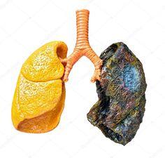 Пластиковая модель человеческих легких показаны последствия курения