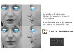 Vor und nach Nasenkorrektur NUR mit Hyaluronsäure ohne OP! Hyaluronic Acid, Wels, Linz