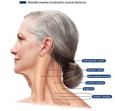 What Is Cervical Dystonia - Bing Images