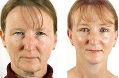 Autologous Fat transfer (taking fat from an area of a patient's body where it is plentiful and transferring it to an area of volume loss) can be an excellent way to replace lost fullness. For many decades, fat transfer has been performed to correct causes of facial aging, such as volume loss, sagging, lines and wrinkles.
