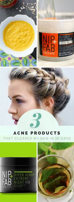 How I cleared my acne in a month with only 3 drugstore products - no fuss acne routine for lazy girls - March 03 2019 at Homemade Skin Care, Diy Skin Care, Skin Care Tips, Skin Tips, Acne Moisturizer, Facial Cleanser, Skin Care Routine For 20s, Skincare Routine, Drugstore Skincare