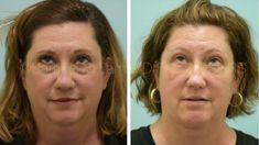 Dallas Lower Blepharoplasty, Fat Transfer, Chin Augmentation, and Liposu... Chin Implant, Fat Transfer, Facial Rejuvenation, Liposuction, Dallas, Youtube, Youtubers, Youtube Movies