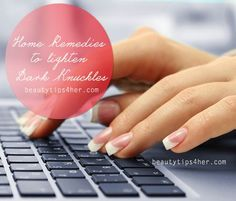 7 Easy Home Remedies to Eliminate Dark Knuckles | Beauty and MakeUp Tips