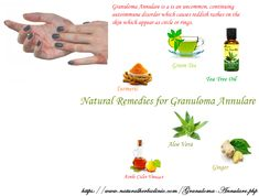 Natural Treatment for Granuloma Annulare
