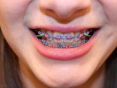 C'est cool - Braces Colors and Patterns - Braces Braces Smile, Teeth Braces, Activated Charcoal Teeth Whitening, Natural Teeth Whitening, Somerset, Braces Problems, Savannah, Cute Braces Colors, Getting Braces