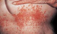 Candida Albicans On Face Treatment – Yeast Infection and ...