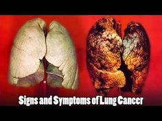 10 Signs and Symptoms of Lung Cancer You Should Not Ignore - WATCH VIDEO HERE -> http://bestcancer.solutions/10-signs-and-symptoms-of-lung-cancer-you-should-not-ignore-2    *** signs of lung cancer ***   10 Signs and Symptoms of Lung Cancer You Should Not Ignore   1. Chronic Coughing Everyone suffers from colds and coughs from time to time. But if you have chronic cough that lasts three weeks or more and no other symptoms of a cold, it can be an early sign of...
