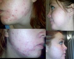 Mary Kay Botanical Effects results after just 60 days!