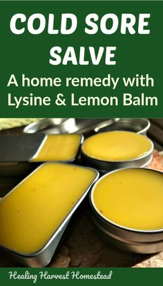 Cold Sore Salve Recipe with Lemon Balm and L-Lysine: Relieve Pain and Help Them Go Away FAST! — Home Healing Harvest Homestead How to make an effective cold sore relief salve so you can get rid of them fast.This is an easy cold sore salve recipe. Natural Add Remedies, Cold Home Remedies, Natural Treatments, Natural Healing, Natural Oil, Natural Beauty, Cold Sore Remedy Fast, Cold Sore Remedy Overnight, Natural Cold Sore Remedy