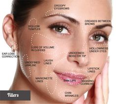 What is a Liquid Facelift? A liquid facelift is a non-surgical procedure, given with a Master Injector Technique, that combines Botox and Filler to restore lost volume, give a natural cheek lift, a… Cheek Fillers, Botox Fillers, Dermal Fillers, Fillers For Face, Chin Filler, Hyaluron Filler, Gesicht Mapping, Liquid Facelift, Facial Anatomy