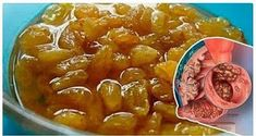 Treat And Prevent Colon Cancer Liver And Prostate Cancer Consuming This Once A Day! | Healthy Living 93