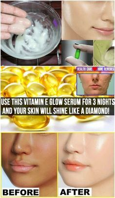 Use this vitamin E glow serum for 3 nights and your skin will shine like a diamond!