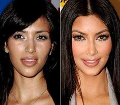 Kim Kardashian before and after cosmetic surgery? She was a natural beauty! Of course, I am open to cosmetic surgery so I'm not trying to criticize her, I just think she looked before before. Kardashian Plastic Surgery, Celebrity Plastic Surgery, Kim Kardashian Before, Kourtney Kardashian, Anti Aging, Celebrities Before And After, Facial, Lip Injections, Lip Fillers