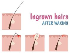 Want to get rid of ingrown hairs??? Try these best home remedies.