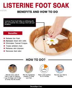 Listerine Foot Soak - Benefits and How to Do It The Right Way? You do not have to run to a beauty clinic for an expensive foot soak every time you plan on one, you can just do Listerine foot soak at home. Pedicure Soak, Pedicure At Home, Manicure Y Pedicure, Beauty Care, Diy Beauty, Beauty Hacks, Beauty Ideas, Beauty Secrets, Beauty Products